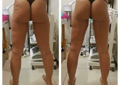 ujędrnianie skóry i likwidacja cellulitu